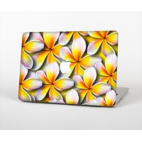 The Vibrant Yellow Flower Pattern Skin Set for the Apple MacBook Air 11""