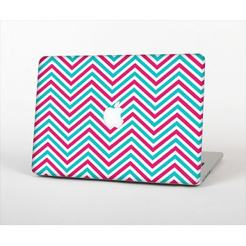 The Blue & Pink Sharp Chevron Pattern Skin Set for the Apple MacBook Air 11""
