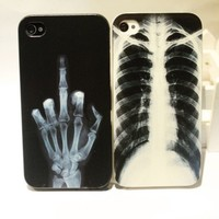 Cool X-ray Skull Bone Hard Cover Case For Iphone 4/4s/5