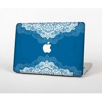 """The Intricate Blue & White Snowflake Name Script Skin for the Apple MacBook Air 13"""""""