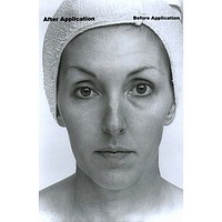 Collagen Lifting Facial with Rapid Wrinkle Erase Cream
