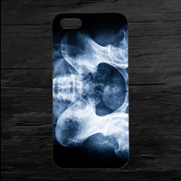 X-Ray  iPhone 4 and 5 Case