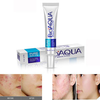 Best Skin Care Effective Face Skin Care Removal Cream Acne Spots Scar Blemish Marks Treatment