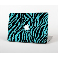 """The Vector Teal Zebra Print Skin Set for the Apple MacBook Pro 13"""" with Retina Display"""